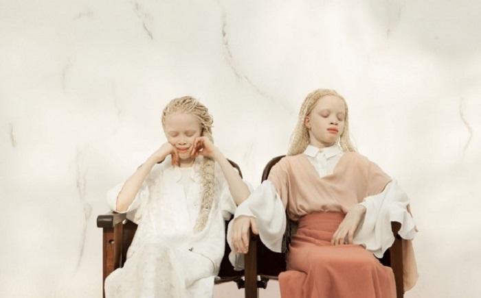 У знаменитых альбиносок нет отбоя от предложений модных брендов. Девочки уже снялись в фотосессиях д