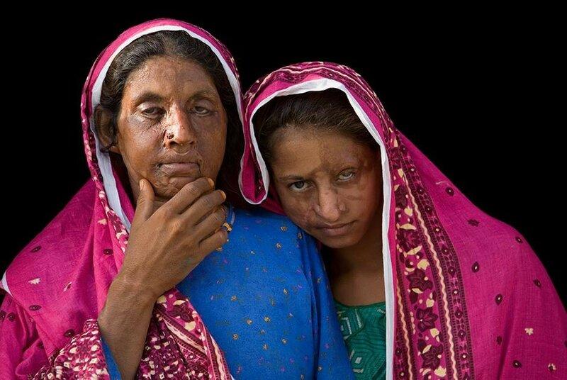 Кошмарные фотографии женщин, изуродованных мужчинами «во имя чести»