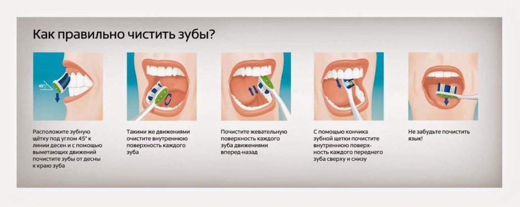 Открытки С Днем стоматолога. Как правильно чистить зубы