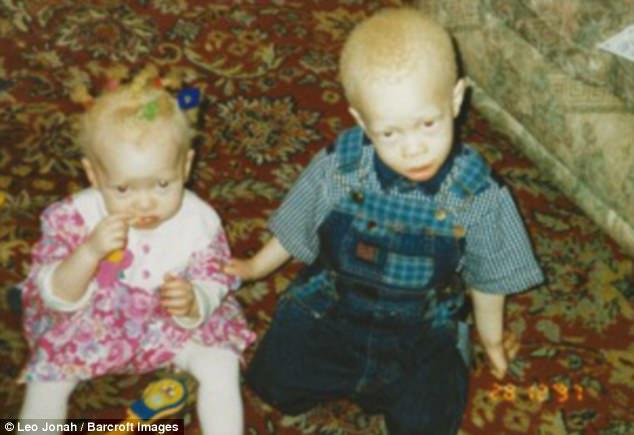 «Я дрался каждый день»: как парень-альбинос из объекта насмешек превратился в востребованную модель (4 фото)