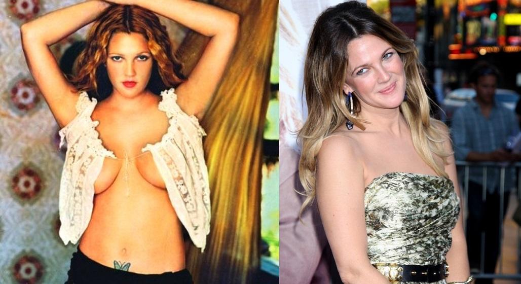 Смотрите выше: звезды, которые сделали операцию по уменьшению груди (6 фото)
