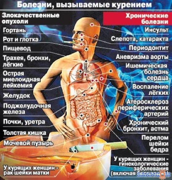 Международный день отказа от курения. Болезни, вызываемые курением