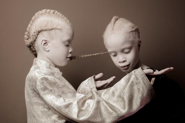 © cargocollective.com  Вероятность рождения ребенка-альбиноса— 1из17000. Даже трудно предс