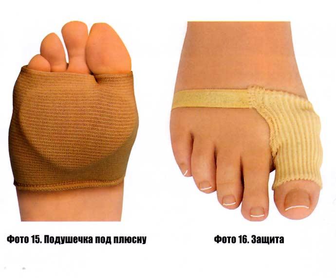 Если поражены другие фаланги пальцев, то достаточно применения защитных муфт (фото 5, 6). Они могут