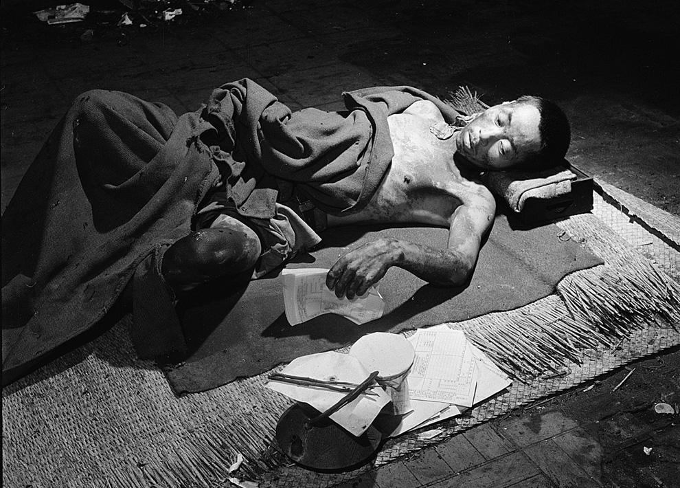 23. Жертва бомбардировки в Хиросиме лежит во временном госпитале, расположенном в одном из уцелевших