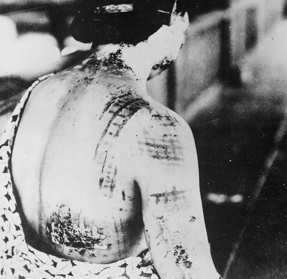 24. Из подписи к фотографии: «Ожоги на коже пациента остались в виде темных пятен от кимоно, которое