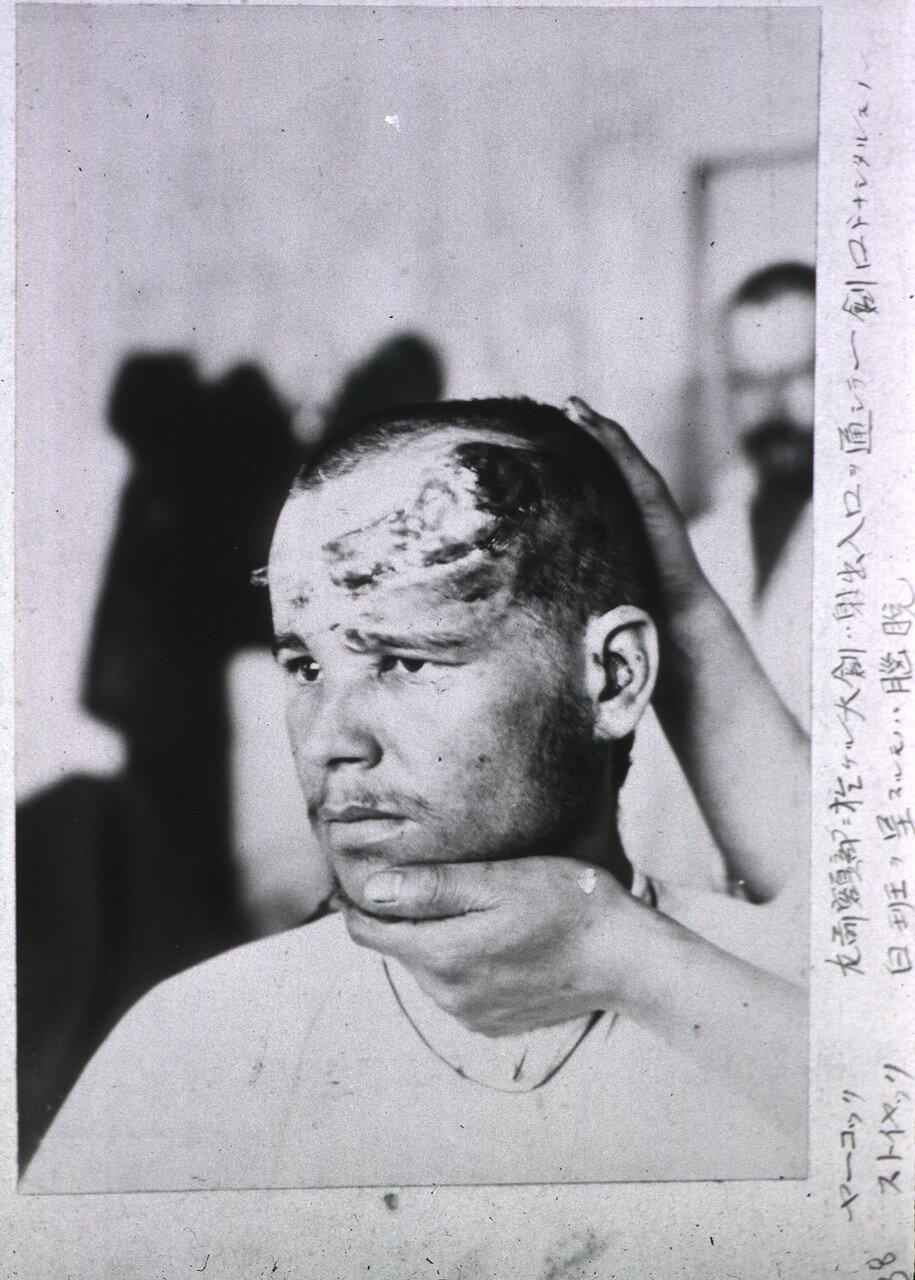 Открытая рана. Пациент покрывает левую сторону лба