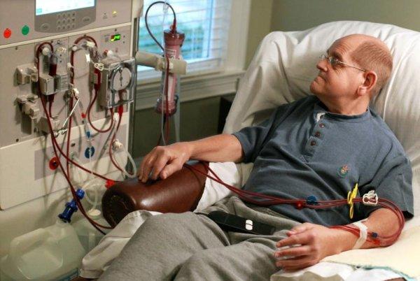 Хронические болезни почек могут вызвать диабет— исследование