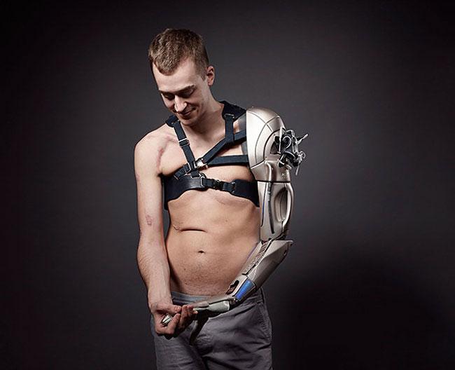 Джеймс может управлять механической рукой, используя нервные импульсы в мышцах. Он может жать руку,