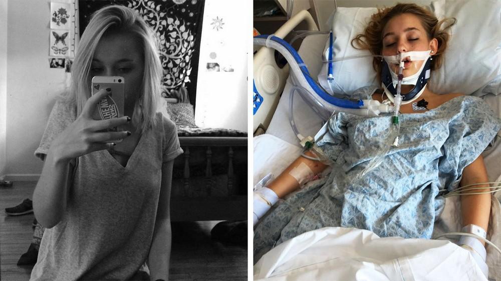 15-летняя девочка впала в алкогольную кому