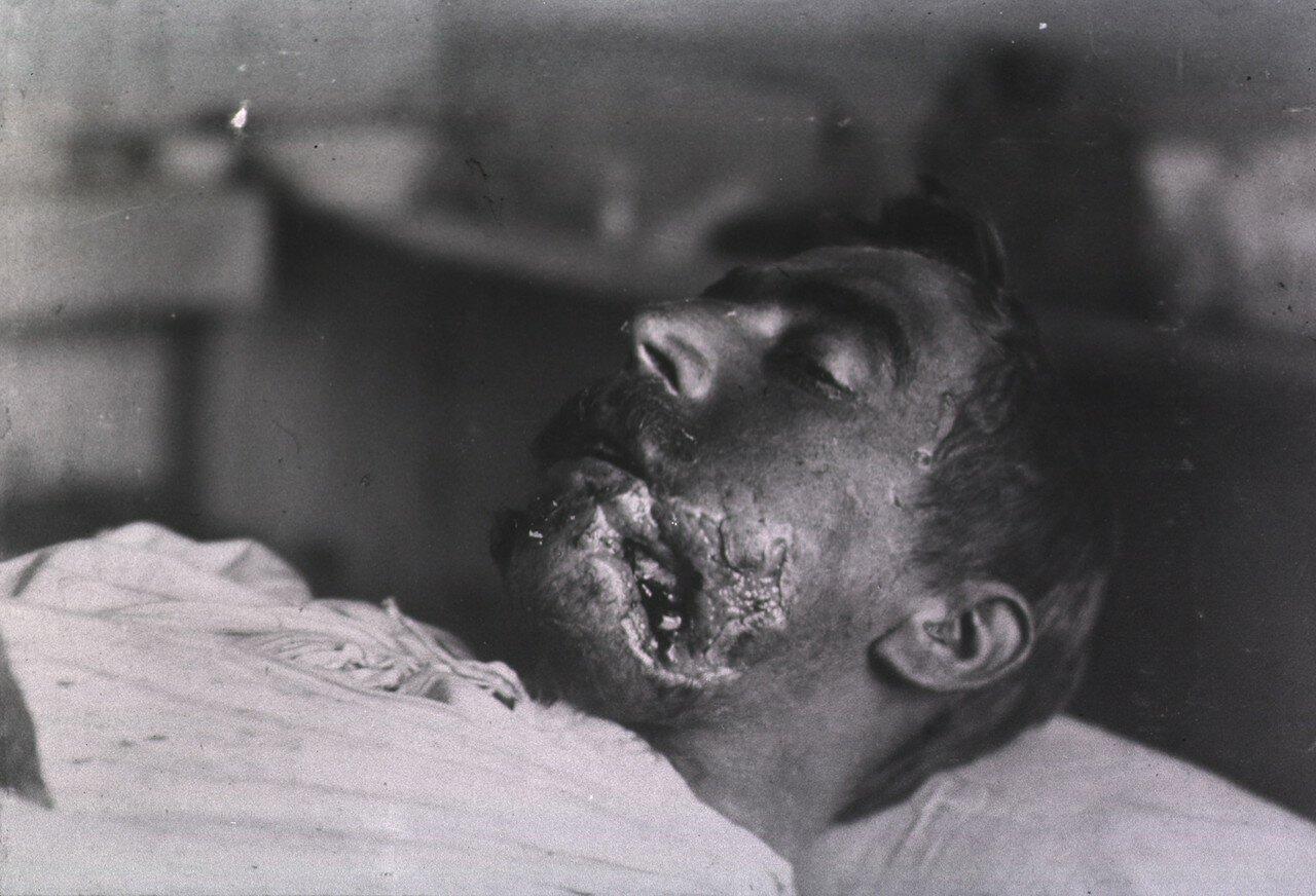Вид открытой раны пациента, расположенной в нижней части левой щеки и челюстной области