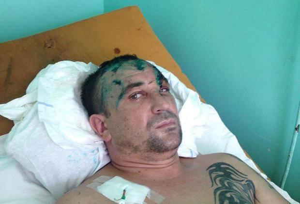 Демобилизованного бойца АТО избили и выбросили из поезда в Запорожье. ФОТО