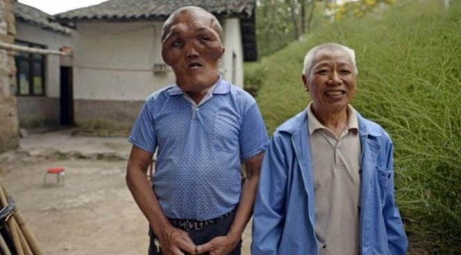 Экология в Китае уродует людей