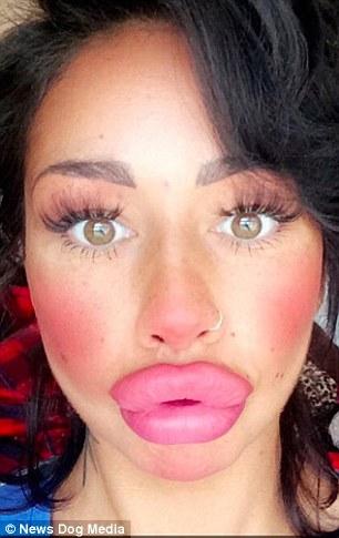 «У меня появилось много новых подписчиков в инстаграме после того, как я увеличила губы. Некоторые п