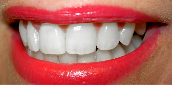 Как сделать зубы белыми в домашних условиях без вреда?
