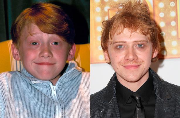Руперт Гринт (Рон Уизли) Руперт, игравший закадычного друга Гарри Поттера с 2001 по 2011 год, бросил