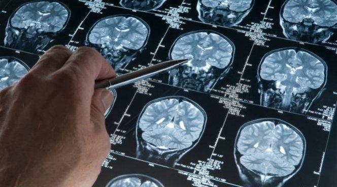 Американские ученые впервый раз применили стволовые клетки для лечения инсульта