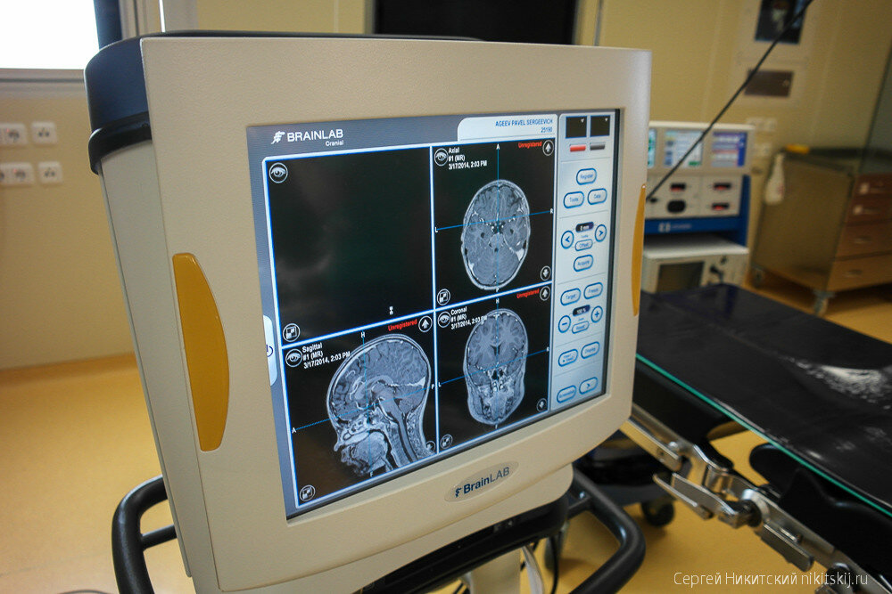 В России впервые провели операцию на мозге еще не рожденного ребенка