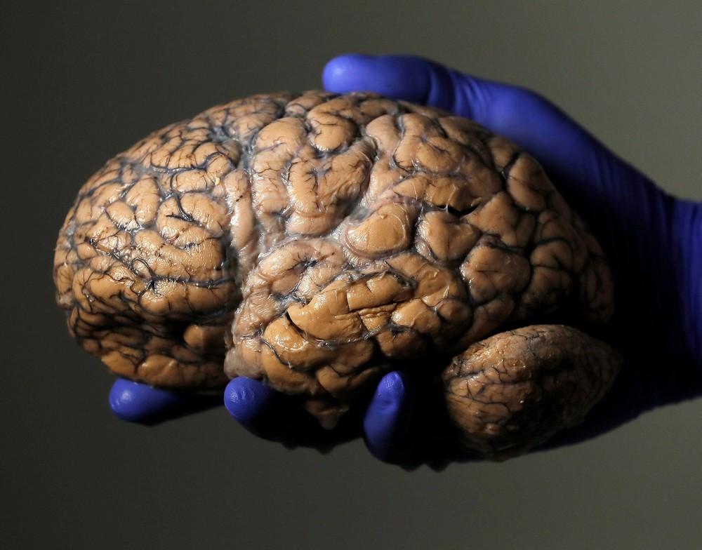 Мозги психически больных людей