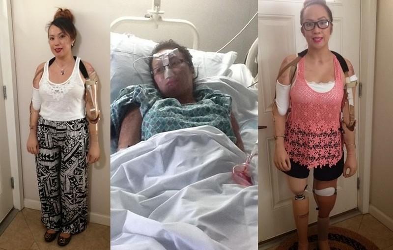 Удивительная история девушки, потерявшей конечности