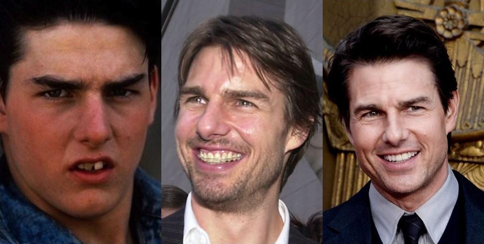 Эффектные преобразования зубов знаменитостей благодаря брекетам