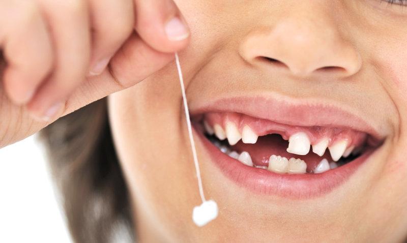Врачи советуют родителям сохранять зубы их детей. Вот зачем… (1 фото)