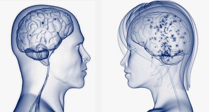 Ученые: Мужской мозг всёже больше женского