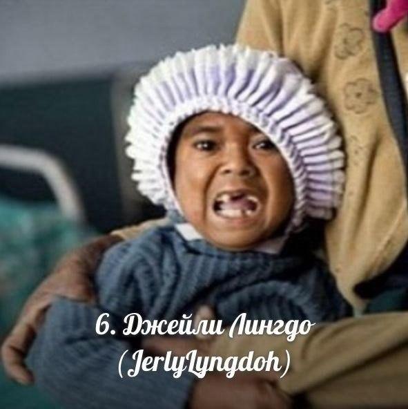 Живет в Индии уже 27 лет, а имеет развитие 2-летнего ребенка, вес 11 кг и рост 84 см, поэтому и