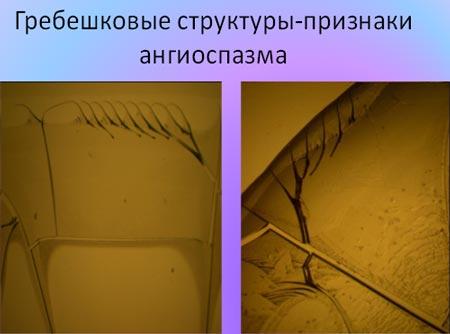 Гребешковые структуры