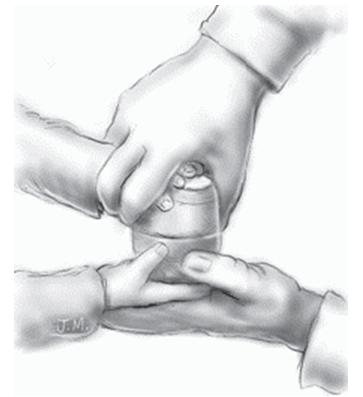 Метод «рука в руке»