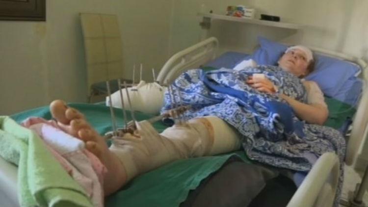 Россиянка, пострадавшая при обстреле сирийского Алеппо, доставлена вВоенно-медицинскую академию в северной столице