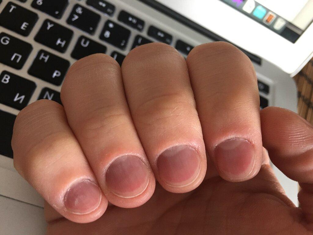 игры что делать если обгрызла ногт после физических