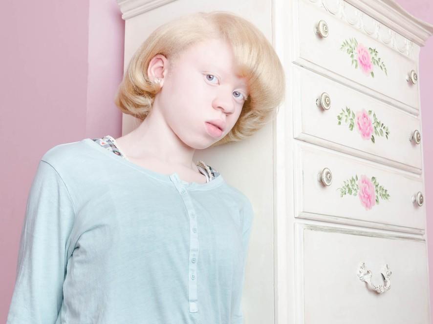 Люди-альбиносы (13 фото)