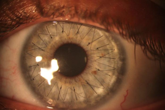Операция по трансплантации роговицы глаза. Гроза и радуга
