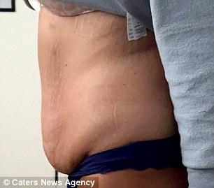 32 летняя англичанка Сара Олдхэм,похудела на 47 кг, чтобы