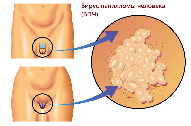 папилломы в области гениталий