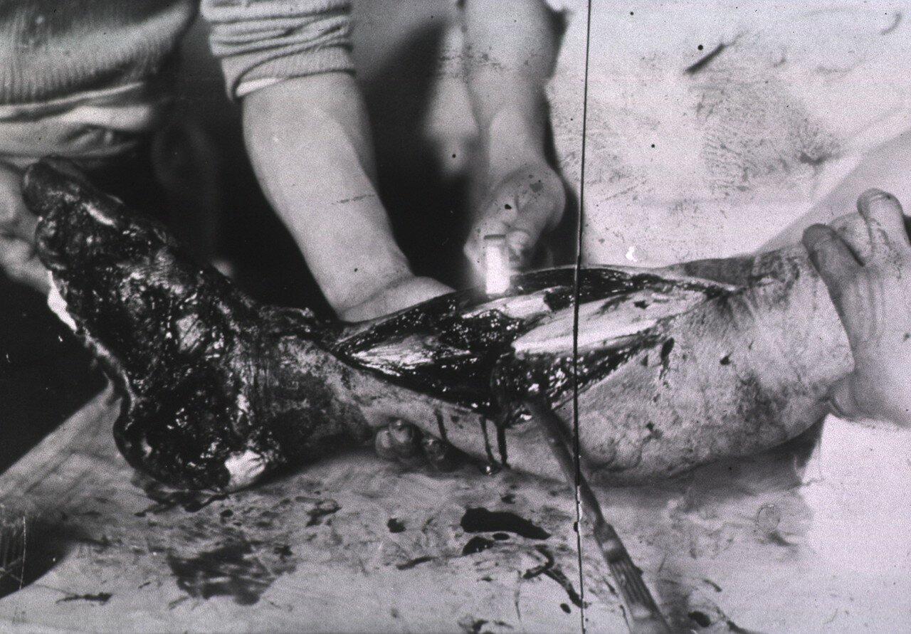 Нижняя часть ноги раненого пациента