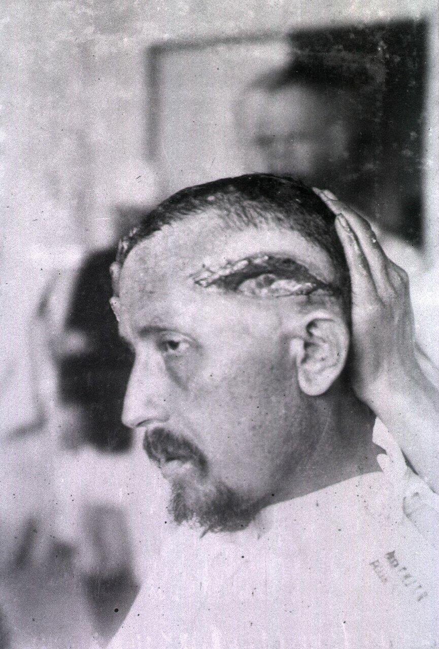 Открытая рана простирается от лба пациента через всю левую сторону головы