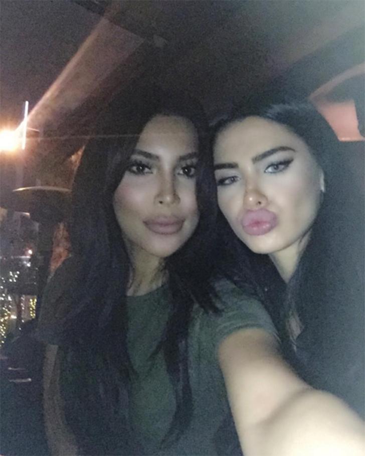 Камилла поначалу отрицала, что делала пластическую операцию, чтобы быть больше похожей на Ким, но по