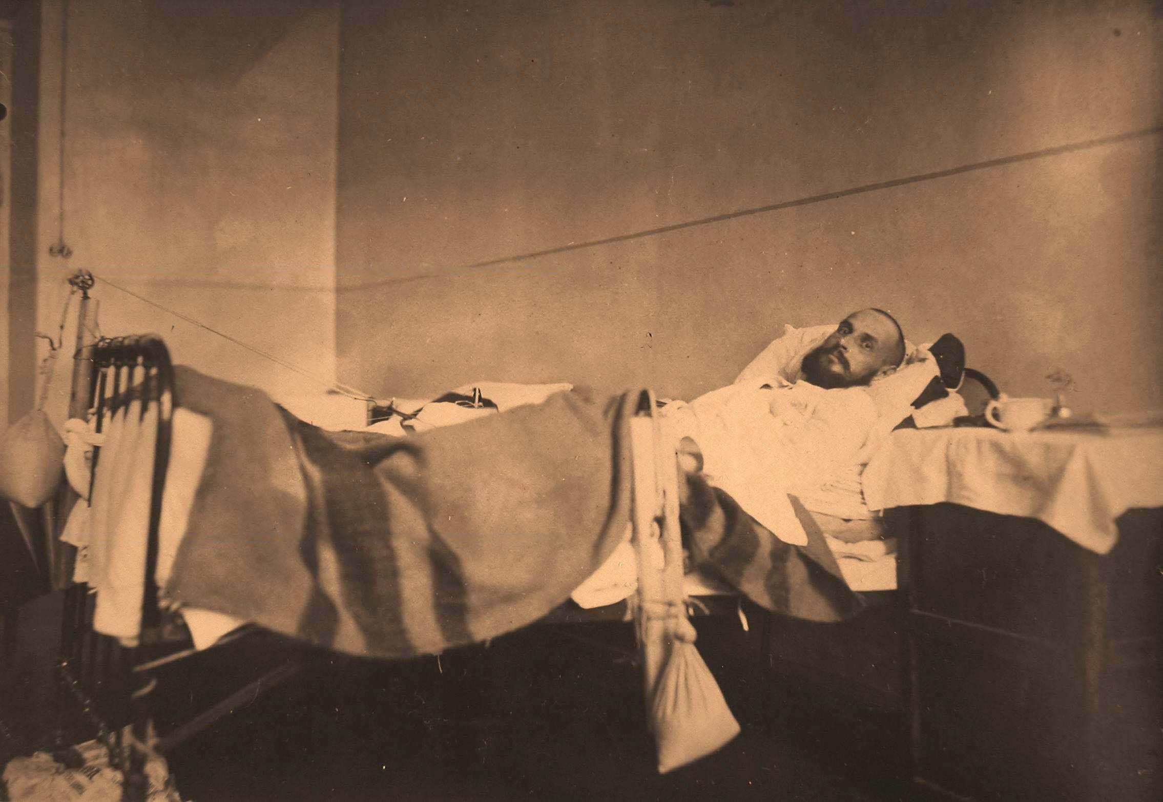 21. Раненый офицер с переломом бедра в палате госпиталя (лечение вытяжением по Штейману)