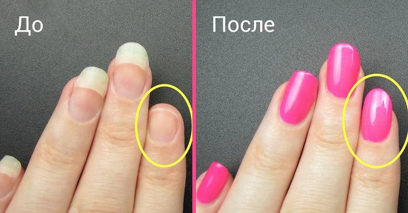 Раскрыт секрет быстрого восстановления сломанного ногтя! (1 фото)