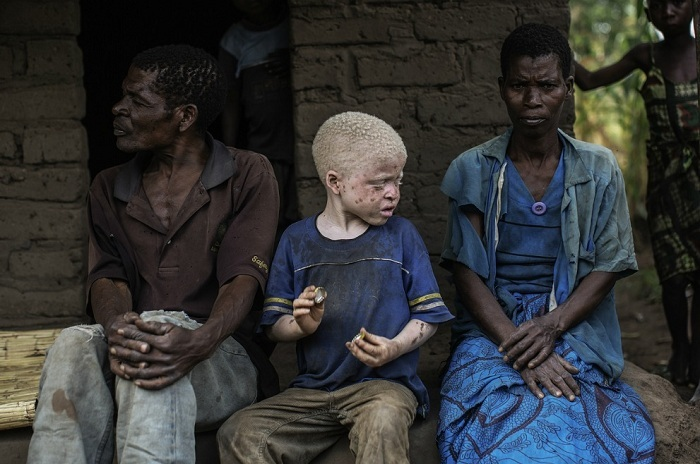 Жуткая реальность: в Африке людей-альбиносов убивают, чтобы сделать из них амулеты (6 фото)