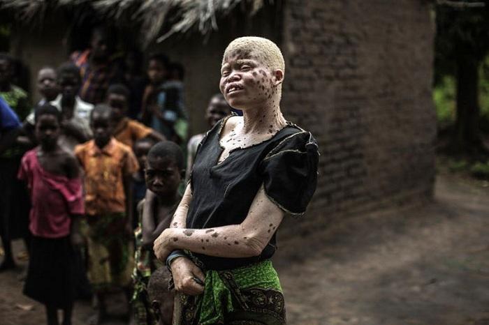 Местные шаманы используют кожу, руки, ноги, волосы и кровь альбиносов в процессе изготовления амулет