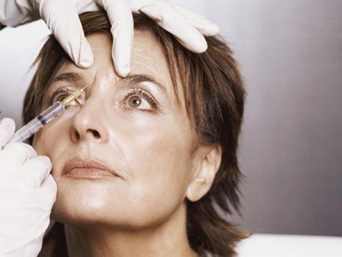 2. Инъекции ботокса Многие знакомы с процедурой введения ботокса под кожу, позволяющей значительно р