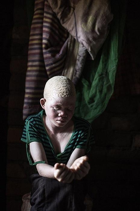 Жуткая реальность: в Африке людей-альбиносов убивают, чтобы сделать из них амулеты Несмотря на то, ч