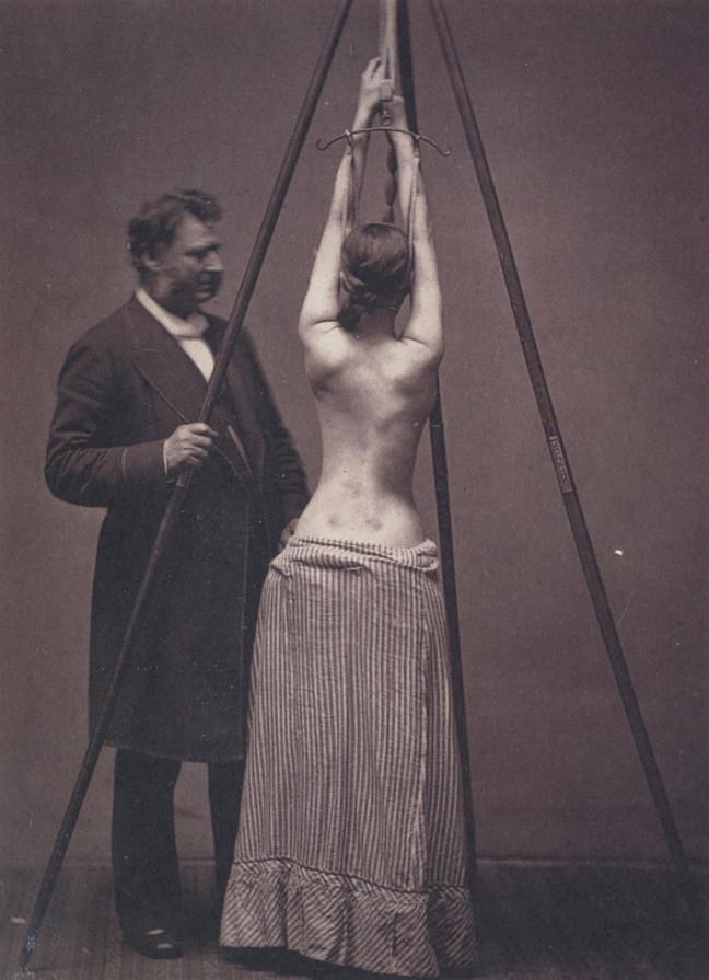 4. Доктор Льюис Сейр лечит сколиоз. Фото времен викторианской Англии.