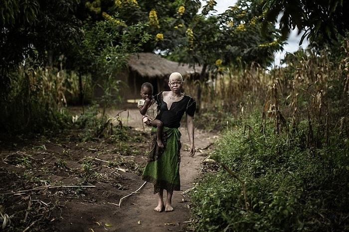 Как известно, альбинизм — это генетическое нарушение, при котором в организме отсутствует фермент, у
