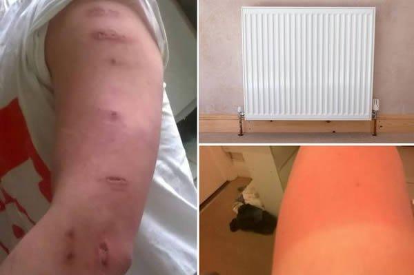 5. Подвыпивший 21-летний студент из Плимута, графство Девон, заснул на радиаторе отопления. Это случ
