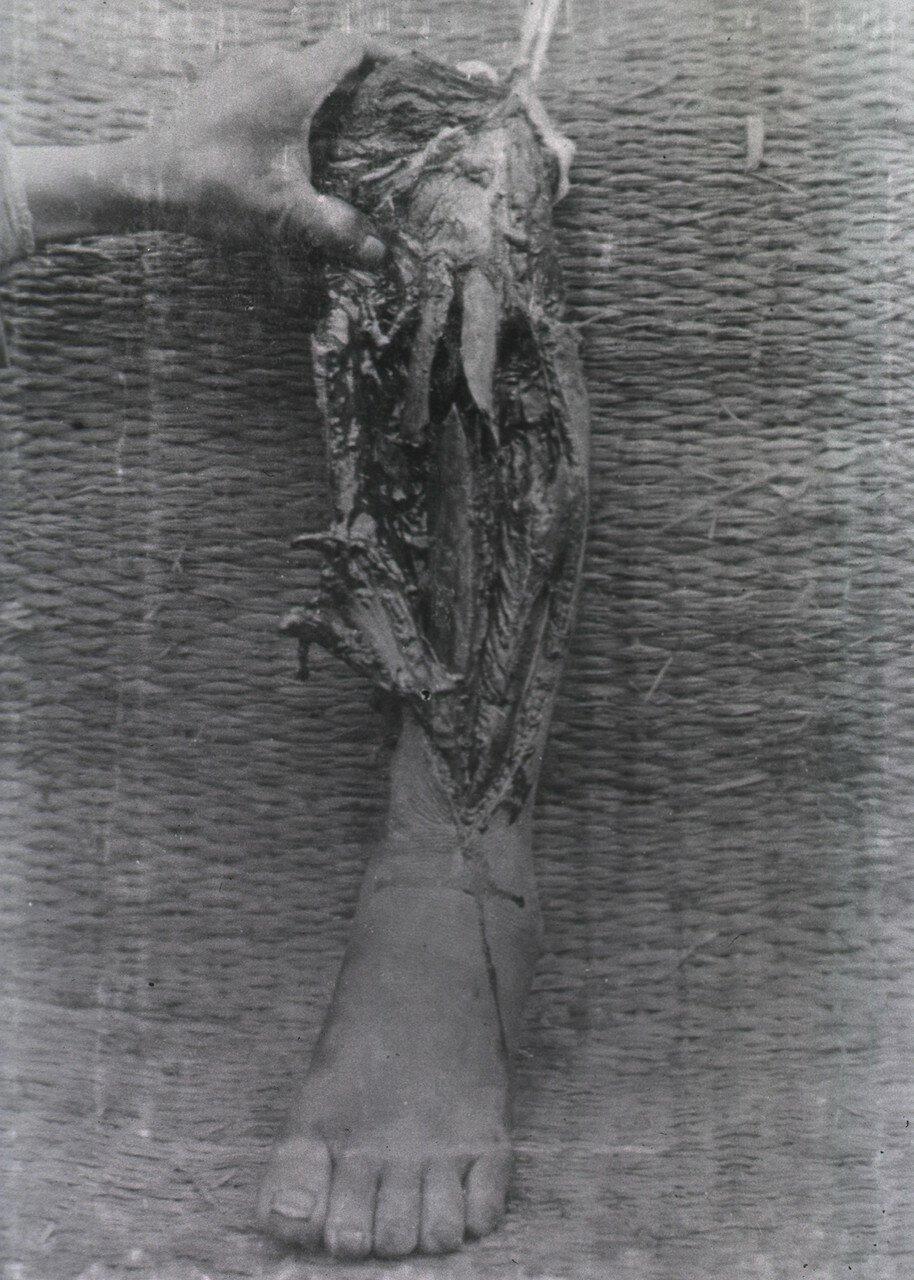Ампутированные остатки нижней части ноги