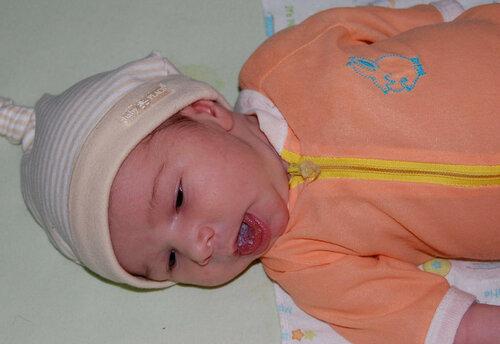 Молочница у новорожденных во рту лечение